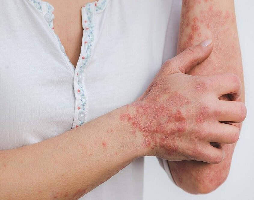 Inflammation - cbd oil brisbane